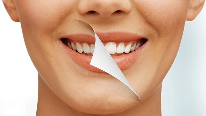 отбеливание зубов клокс - способы отбеливания зубов